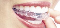 リンガル矯正 歯の裏側に装置を取り付ける目立ちにくい矯正治療